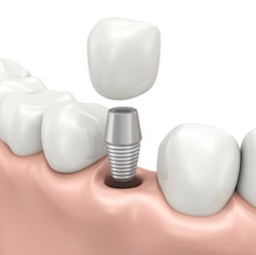 dental implant in jaw with crown in boise